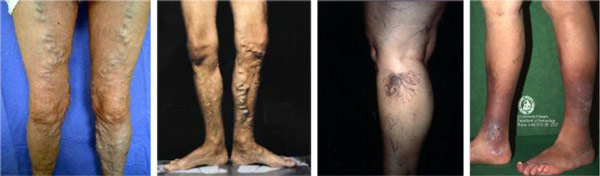 Vascular Laser Clinic Causes Of Varicose Veins And